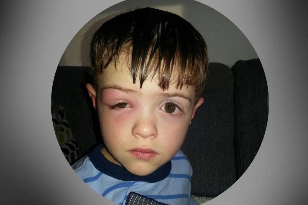 eye-issue-sore-eye-boy-1024x682-1