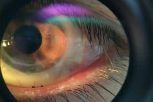 Eye With Eyeprint Pro 1280x853 1024x682 1