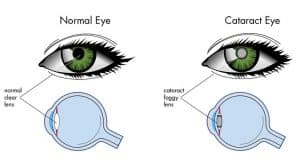 cataract eye crossection copy