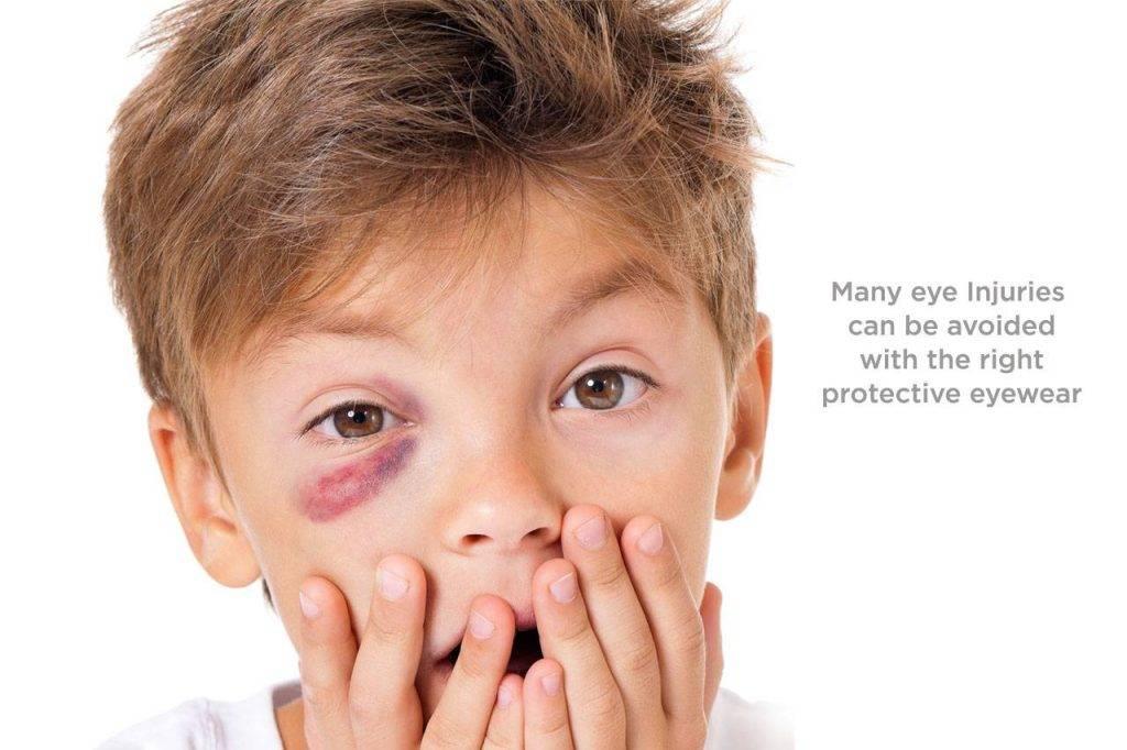eyewear-black-eye-boy-avoidable-1024x682-1