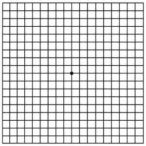 Amsler grid JPG