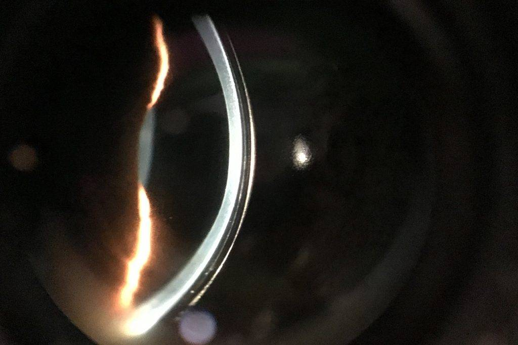 Cornea-With-Scleral-Lens-1280x853-1024x682-1