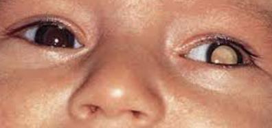 retinoblas
