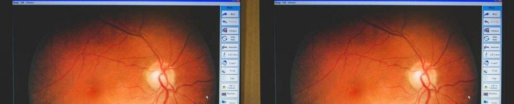 retina-views-1024x209-1